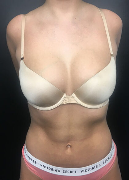 Liposuction Before & After Patient #9794