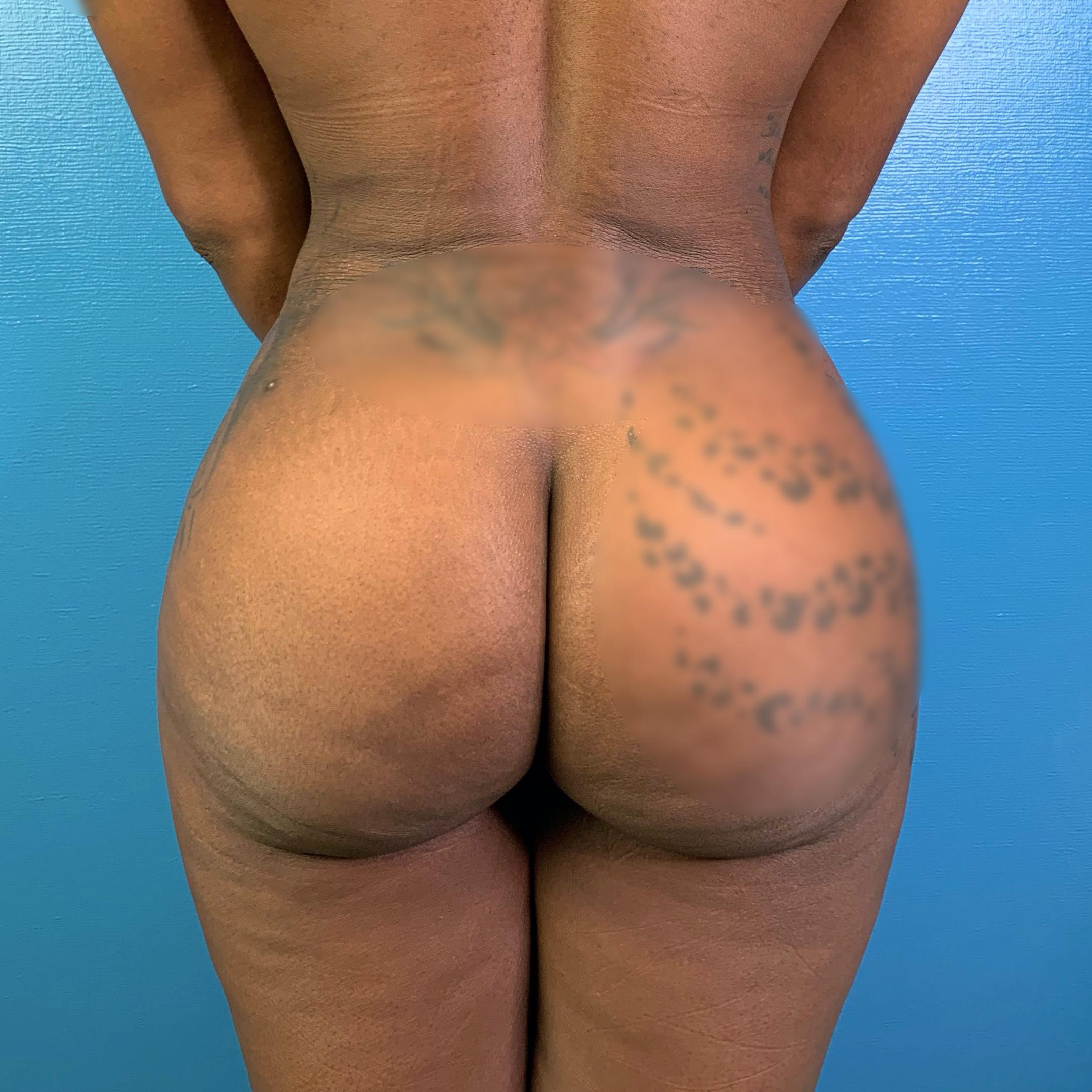Brazilian Butt Lift Before & After Patient #9854