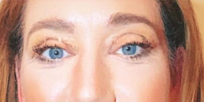 Blepharoplasty Before & After Patient #10025