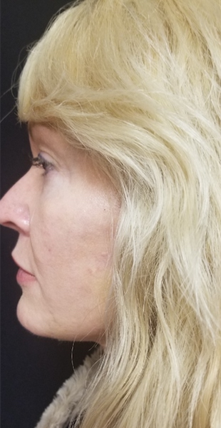 Facelift Before & After Patient #10054