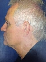 Facelift Before & After Patient #10036