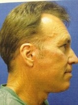 Facelift Before & After Patient #10039