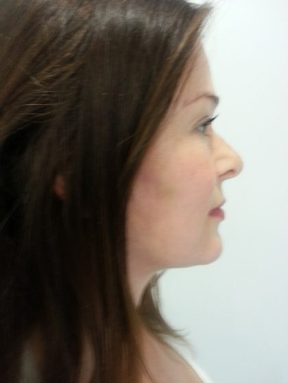 Facelift Before & After Patient #10042