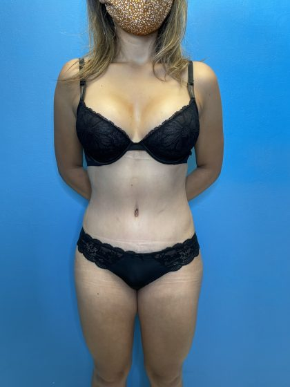 Tummy Tuck Before & After Patient #10090