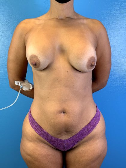 Breast Augmentation Before & After Patient #10123