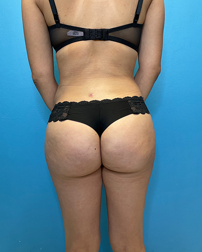 Brazilian Butt Lift Before & After Patient #10181
