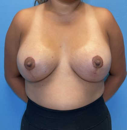 Breast Lift Before & After Patient #10214