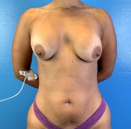Breast Lift Before & After Patient #10247