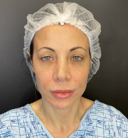 Facelift and Necklift Before & After Patient #10258