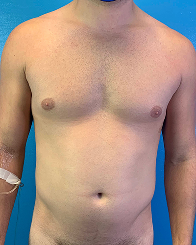 Liposuction Before & After Patient #10269